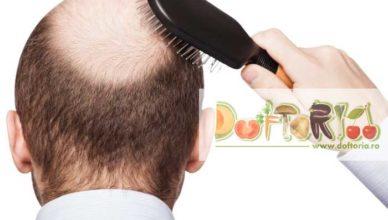 alopecia doftoria