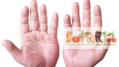 eczema doftoria