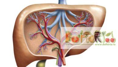 hepatita doftoria