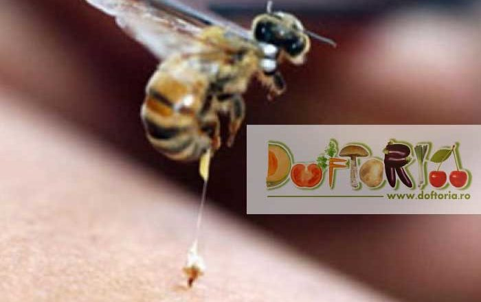 intepaturile de insecte intepatura albine viespi paianjen doftoria.ro