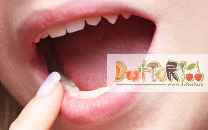 stomatita doftoria.ro gingii gingie dureri dentare