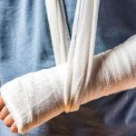 Oase fracturate: cum le vindecăm rapid