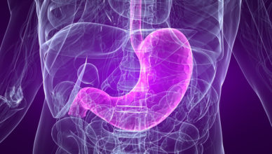 refluxul gastro esofagian doftoria