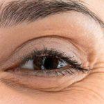 Blefarospasm – simptome, cauze și tratament