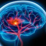 5 soluţii prin care poţi preveni un atac vascular cerebral