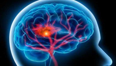atac vascular cerebral