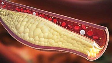 colesterol mărit