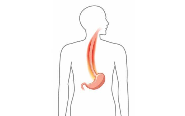 reflux gastroesofagian doftoria