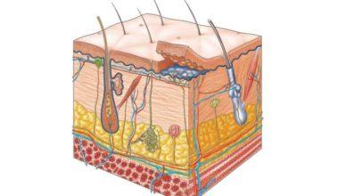 Tratamentul furunculozei