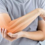 Reumatism: simptome, tratamente naturisteși factorii de risc