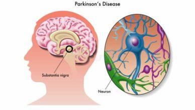 parkinson boala tratamente naturiste cauze simptome