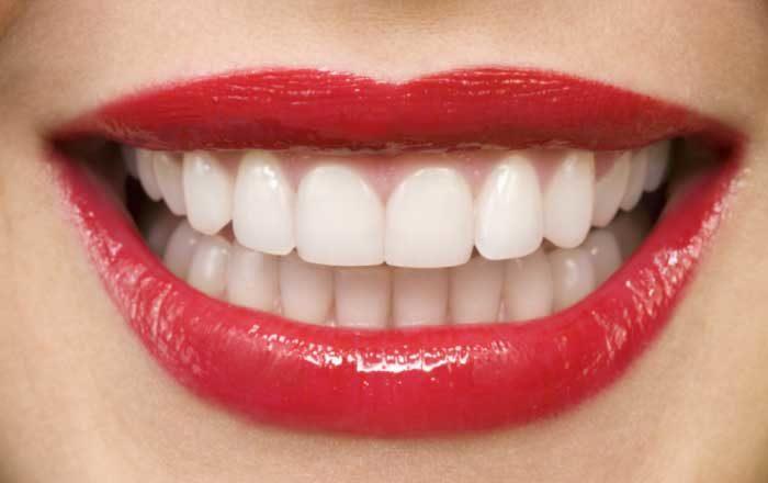 Caria dentarǎ