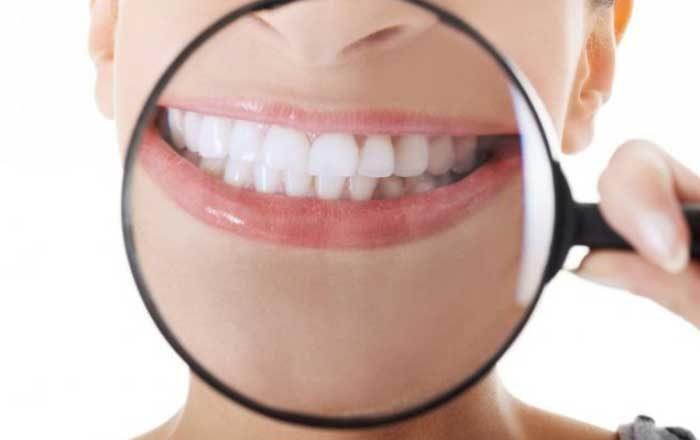 periodontoza