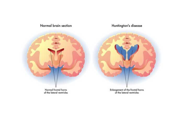 Boala Huntington coreea Huntington