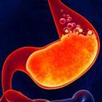 Arsuri la stomac: cauze, sfaturi şi tratament naturist