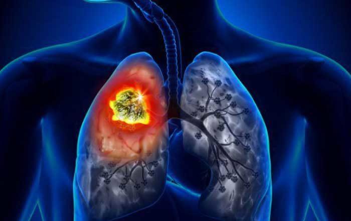 bronşita acută şi bronşita cronică
