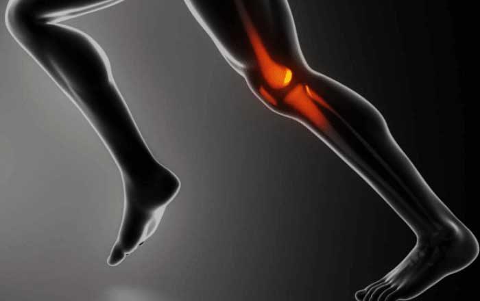 gonartroza artroza genunchiului