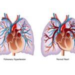 Hipertensiune pulmonară: simptome, cauze, tratament, diagnostic