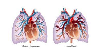 hipertensiune pulmonară