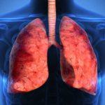 Remedii naturiste pentru diferite boli de plămâni