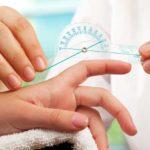 Sclerodermie: simptome, diagnostic, cauze și tratament