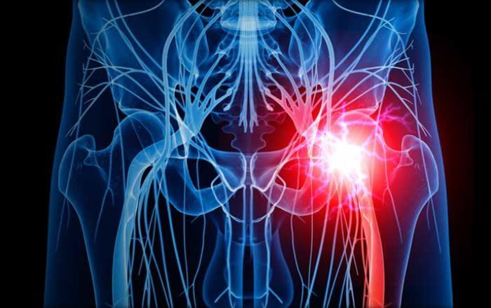 Coxartroza simptome si tratament