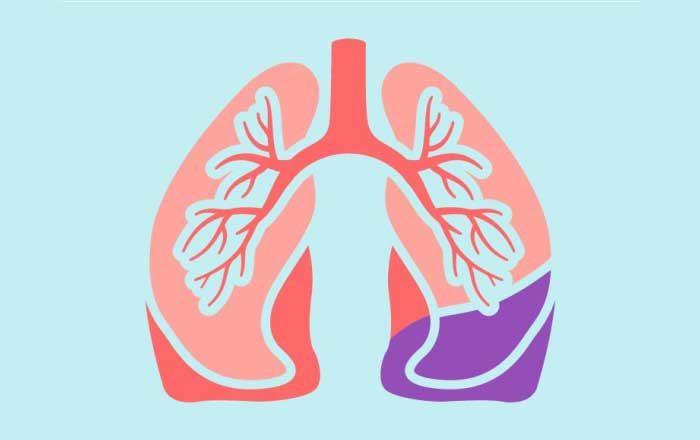 Pneumonită