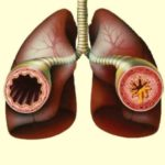Sindromul Churg Strauss: simptome, cauze și tratament