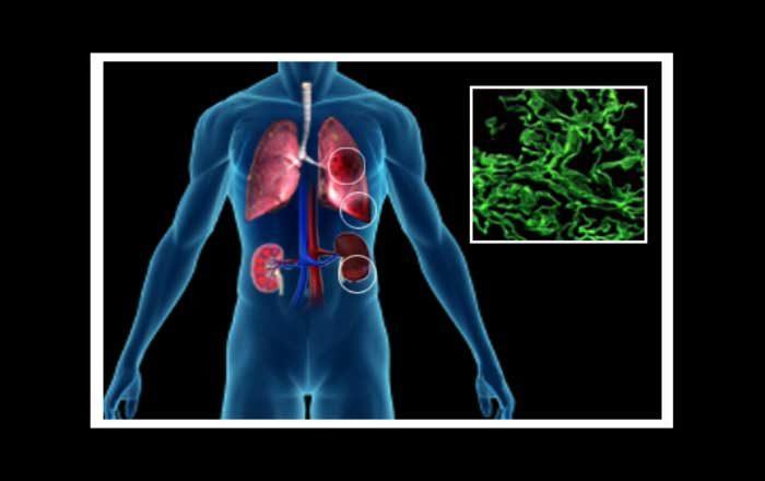Sindromul Goodpasture simptome tratament