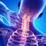 Spondiloza cervicală: Cervicartroza, boala care înţepeneşte gâtul