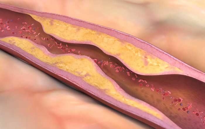 când apare ateroscleroza