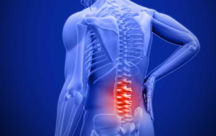 durere de spate simptome afectiuni dureri