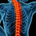 Hernia de disc: simptome, cauze și tratament