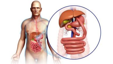 Bypass gastric