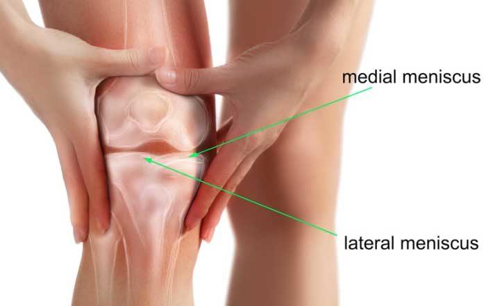 meniscuri medicamente pentru inflamarea genunchiului