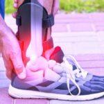 Fractura de gleznă: simptome, diagnostic și recuperare