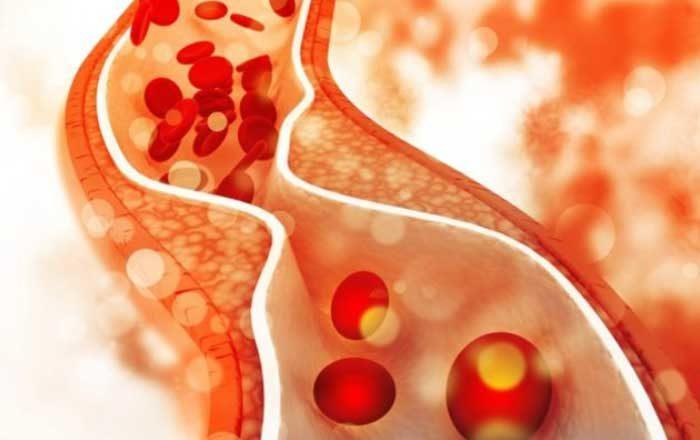 Bolile arterelor şi ale venelor