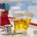 Acid uric în corp (hiperuricemie): cauze şi alimentație
