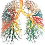 Bronhopneumopatie obstructivă cronică: simptome, cauze, tratament