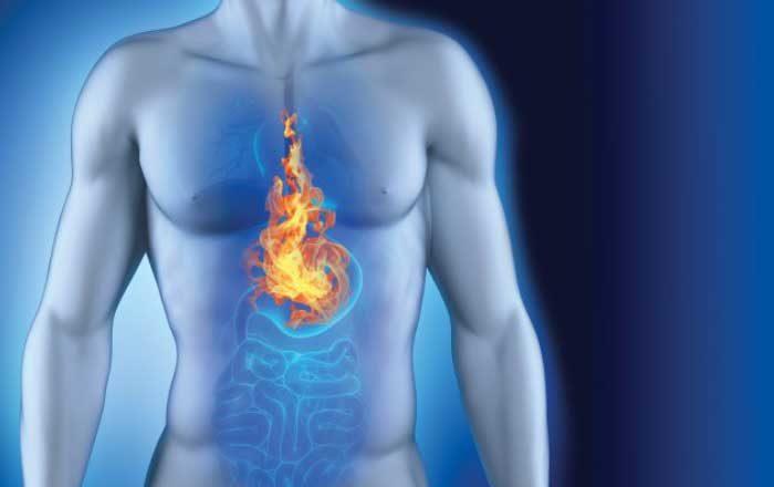 Aciditate gastrică