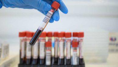 câţi români au hepatită