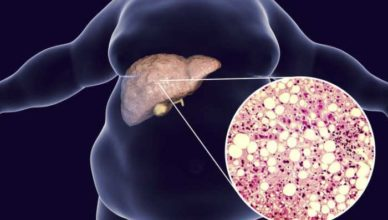 Simptome ale unui ficat deteriorat