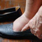 Sfaturi şi remedii naturiste pentru Retenţie de Apă (prevenire şi tratamente)