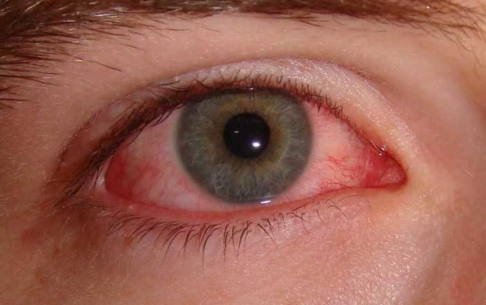 vedere ochii roșii
