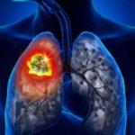 Bronşita acută şi bronşita cronică: diferenţe, simptome, cauze, tratament