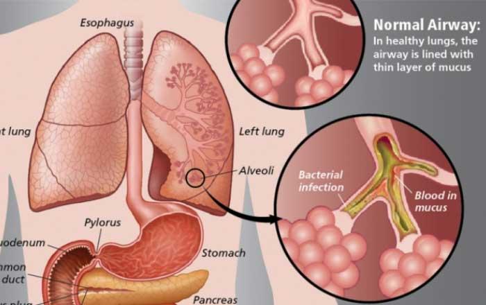 Fibroza chistică – 38 mutații CFTR