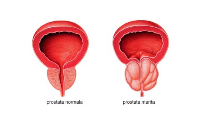 pierdeți prostată în greutate)
