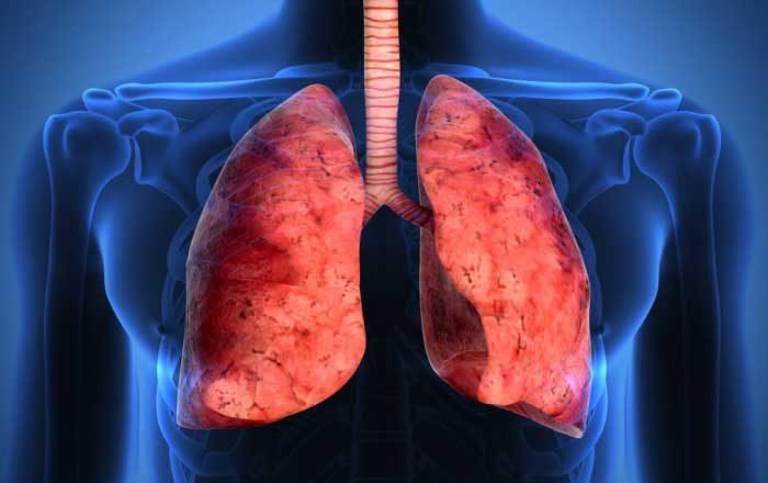 boli de plămâni