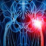 Coxartroza: simptome, cauze, diagnostic și tratament