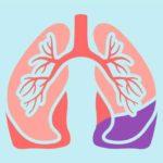 Pneumonită: simptome, cauze și tratament naturist